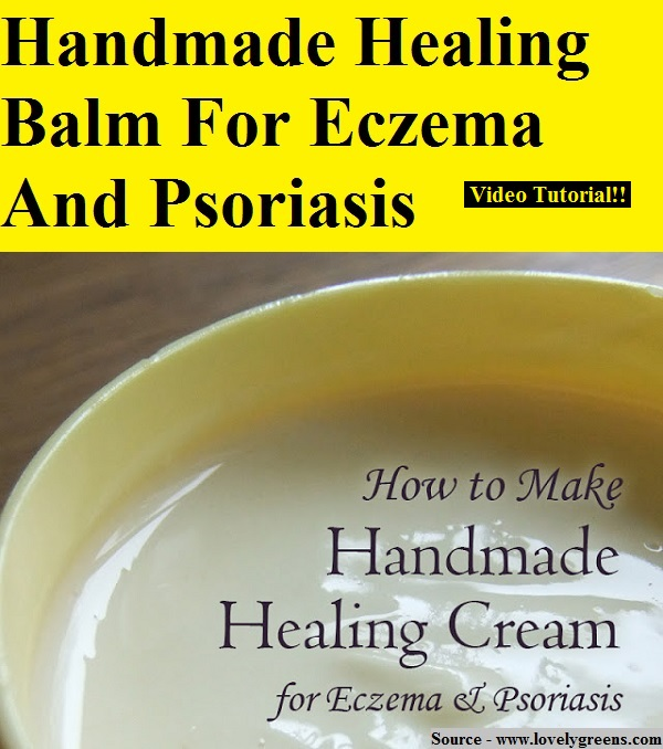 Handmade Healing Balm For Eczema And Psoriasis